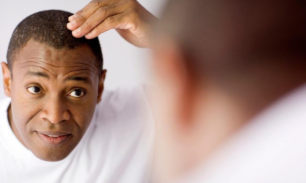 Diabetes Cause Hair Loss