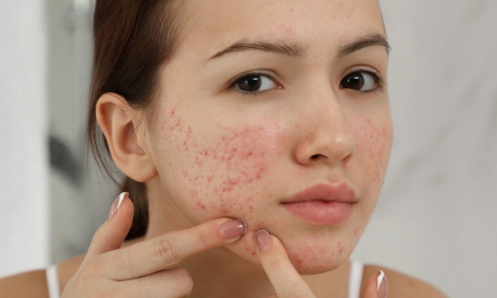 Tips That May Help To Reduce Acne
