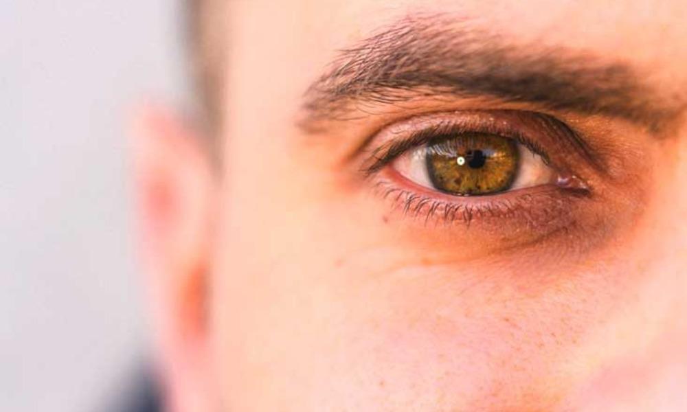Under-Eye Skin