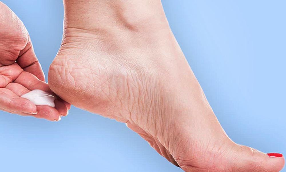 soft feet home remedy